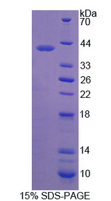 MMP23 Protein - Recombinant Matrix Metalloproteinase 23B By SDS-PAGE