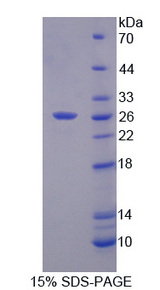 MMP23 Protein - Recombinant Matrix Metalloproteinase 21 By SDS-PAGE