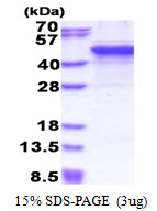 MMP3 Protein