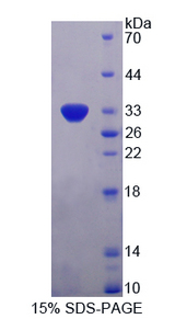 MPS1 / TTK Protein - Recombinant  TTK Protein Kinase By SDS-PAGE