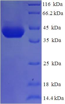 MRDS1 / OFCC1 Protein