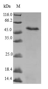 MRPS22 Protein - (Tris-Glycine gel) Discontinuous SDS-PAGE (reduced) with 5% enrichment gel and 15% separation gel.
