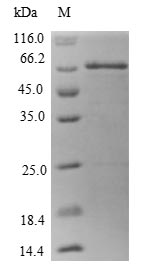 MT3 / Metallothionein 3 Protein - (Tris-Glycine gel) Discontinuous SDS-PAGE (reduced) with 5% enrichment gel and 15% separation gel.