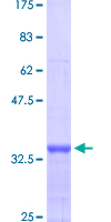 MTA1 Protein - 12.5% SDS-PAGE Stained with Coomassie Blue.