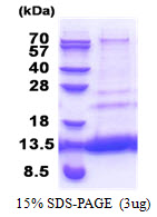 MTCP1NB Protein