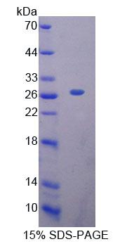 MTF-1 Protein - Recombinant Metal Regulatory Transcription Factor 1 By SDS-PAGE