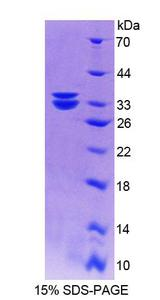 MTUS1 Protein - Recombinant Mitochondrial Tumor Suppressor 1 By SDS-PAGE