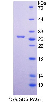 MUTYH / MYH Protein - Recombinant  MutY Homolog By SDS-PAGE
