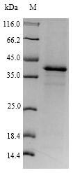 N6AMT1 Protein - (Tris-Glycine gel) Discontinuous SDS-PAGE (reduced) with 5% enrichment gel and 15% separation gel.