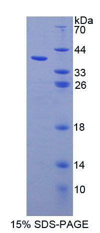 NAG20 / UBAP1 Protein - Recombinant Ubiquitin Associated Protein 1 By SDS-PAGE