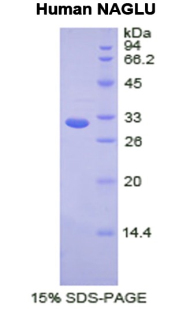 NAGLU Protein - Recombinant  N-Acetyl Alpha-D-Glucosaminidase By SDS-PAGE