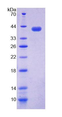 NAP1L1 Protein - Recombinant  Nucleosome Assembly Protein 1 Like Protein 1 By SDS-PAGE