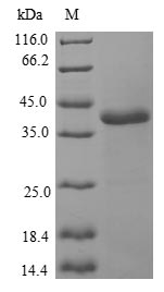 NCALD / Neurocalcin Delta Protein - (Tris-Glycine gel) Discontinuous SDS-PAGE (reduced) with 5% enrichment gel and 15% separation gel.