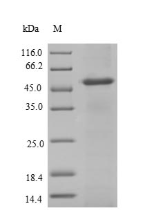 NCBP2 / CBP20 Protein - (Tris-Glycine gel) Discontinuous SDS-PAGE (reduced) with 5% enrichment gel and 15% separation gel.