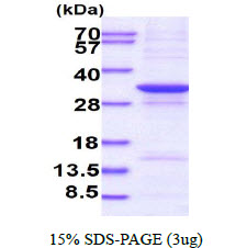 NCEH1 / AADACL1 Protein
