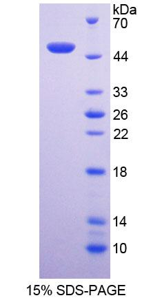 NCF1 / p47phox / p47 phox Protein - Recombinant  Neutrophil Cytosolic Factor 1 By SDS-PAGE