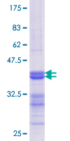 NCOA2 / TIF2 Protein - 12.5% SDS-PAGE Stained with Coomassie Blue.