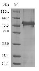 NCS1 / Neuronal Calcium Sensor Protein - (Tris-Glycine gel) Discontinuous SDS-PAGE (reduced) with 5% enrichment gel and 15% separation gel.