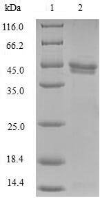 NDUFB5 Protein - (Tris-Glycine gel) Discontinuous SDS-PAGE (reduced) with 5% enrichment gel and 15% separation gel.