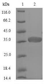 NEFH / NF-H Protein - (Tris-Glycine gel) Discontinuous SDS-PAGE (reduced) with 5% enrichment gel and 15% separation gel.