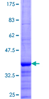 Neurotrypsin Protein - 12.5% SDS-PAGE Stained with Coomassie Blue.