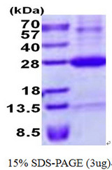 NKG2DL4 / ULBP4 Protein