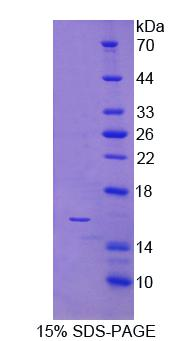 NKP30 Protein - Recombinant Natural Cytotoxicity Triggering Receptor 3 By SDS-PAGE