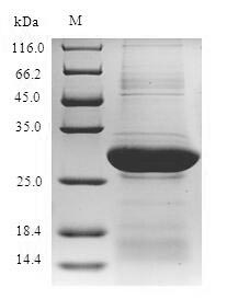NKRF / NRF Protein - (Tris-Glycine gel) Discontinuous SDS-PAGE (reduced) with 5% enrichment gel and 15% separation gel.