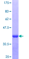 NKRF / NRF Protein - 12.5% SDS-PAGE Stained with Coomassie Blue