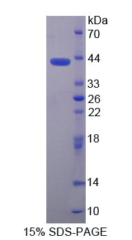NMB / Neuromedin B Protein - Recombinant Neuromedin B By SDS-PAGE