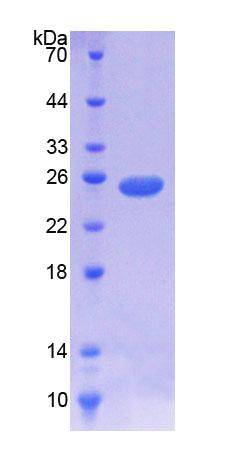 NOMO1 / PM5 Protein - Recombinant  NODAL Modulator 1 By SDS-PAGE