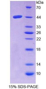 NPC2 Protein - Recombinant  Niemann Pick Disease Type C2 By SDS-PAGE