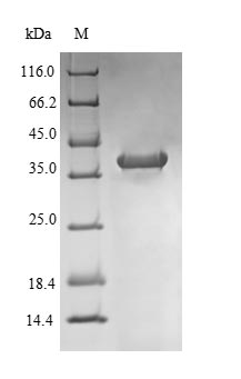 NR1I2 / PXR Protein - (Tris-Glycine gel) Discontinuous SDS-PAGE (reduced) with 5% enrichment gel and 15% separation gel.