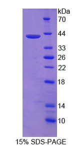 NR4A2 / NURR1 Protein - Recombinant Nuclear Receptor Related Protein 1 By SDS-PAGE
