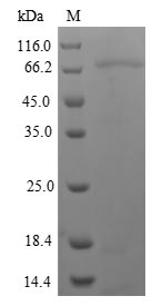 NRG3 Protein - (Tris-Glycine gel) Discontinuous SDS-PAGE (reduced) with 5% enrichment gel and 15% separation gel.