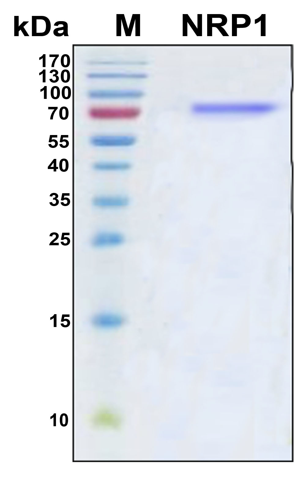 NRP1 / Neuropilin 1 Protein - SDS-PAGE under reducing conditions and visualized by Coomassie blue staining