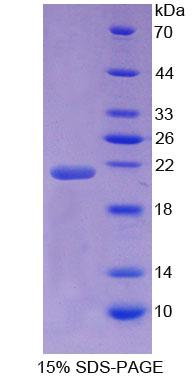 NSF Protein - Recombinant  N-Ethylmaleimide Sensitive Factor By SDS-PAGE