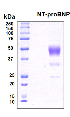 NT-proBNP Protein - SDS-PAGE under reducing conditions and visualized by Coomassie blue staining