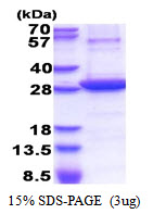 NT5E / eNT / CD73 Protein