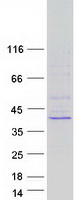 NTHL1 Protein - Purified recombinant protein NTHL1 was analyzed by SDS-PAGE gel and Coomassie Blue Staining