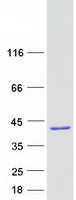 Purified recombinant protein NUDT22 was analyzed by SDS-PAGE gel and Coomassie Blue Staining