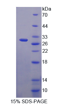 NUP62 Protein - Recombinant  Nucleoporin 62kDa By SDS-PAGE