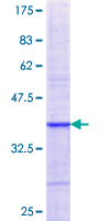 NXF2 Protein - 12.5% SDS-PAGE Stained with Coomassie Blue.