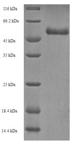 ODAM Protein - (Tris-Glycine gel) Discontinuous SDS-PAGE (reduced) with 5% enrichment gel and 15% separation gel.