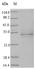 OGG1 Protein - (Tris-Glycine gel) Discontinuous SDS-PAGE (reduced) with 5% enrichment gel and 15% separation gel.