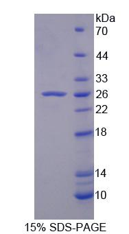 OPTN / Optineurin Protein - Recombinant Huntingtin Interacting Protein 2 By SDS-PAGE