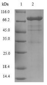 OSM / Oncostatin M Protein - (Tris-Glycine gel) Discontinuous SDS-PAGE (reduced) with 5% enrichment gel and 15% separation gel.