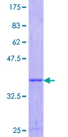 OSMR / IL-31R-Beta Protein - 12.5% SDS-PAGE Stained with Coomassie Blue.