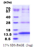 OXLD1 / C17orf90 Protein