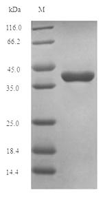 Oxytocin Protein - (Tris-Glycine gel) Discontinuous SDS-PAGE (reduced) with 5% enrichment gel and 15% separation gel.